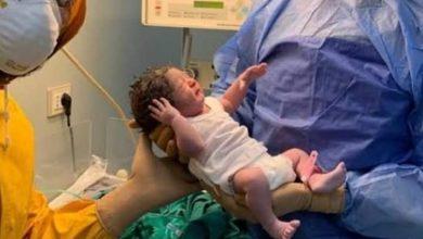 """صورة مصر تسجل """"حكاية أم"""" معافاة من كورونا تضع مولودها """"آدم"""