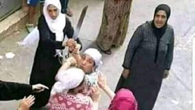 صورة قبل ما تدخل خناقة تعرف على عقوبة الجرح والعاهة المستديمة في القانون المصري