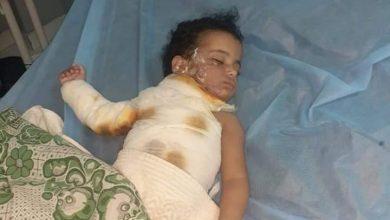 صورة استغاثة عاجلة إلي وزارة الصحة والمسؤولين بالإسماعيلية