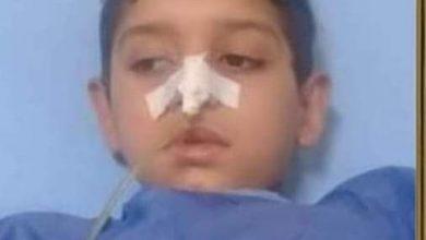 """صورة بعد أكثر من 6 عمليات.. رحيل الطفل """"يوسف"""" ضحية الإهمال"""