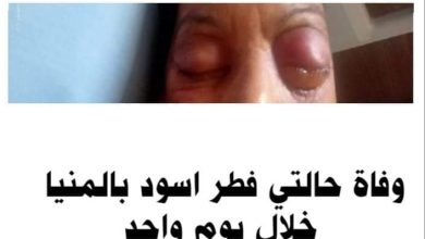 صورة طبيب مناعة بالمنيا : وفاة حالتي فطر اسود من المنيا خلال يوم واحد